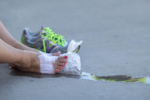 feet blister 2013 Dallas Fort Worth Susan G. Komen 3-Day breast cancer walk